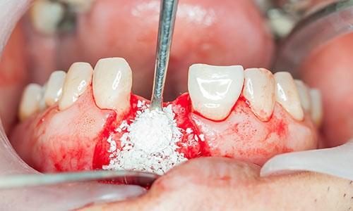 Фото наращивания костной ткани на нижней челюсти