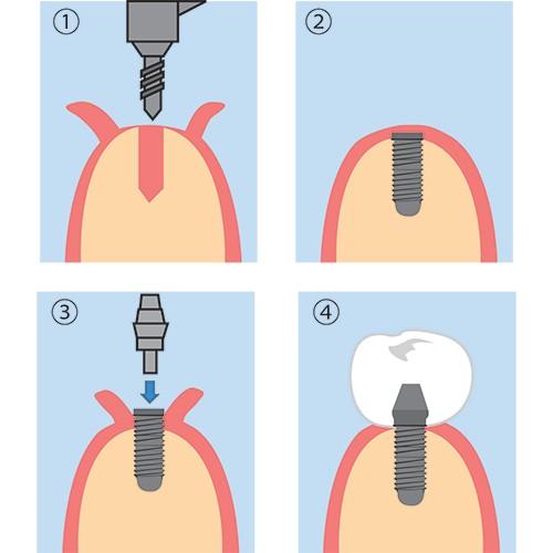 implantacija_zubov_bez_razrezov