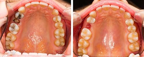 implantacija_zubov_bez_razrezov_do_posle