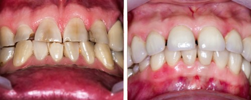 Зубы после проведения художественной реставрации