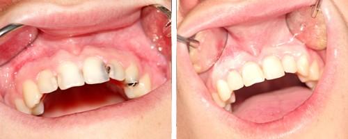 фото зубов до и после проведение художественной реставрации