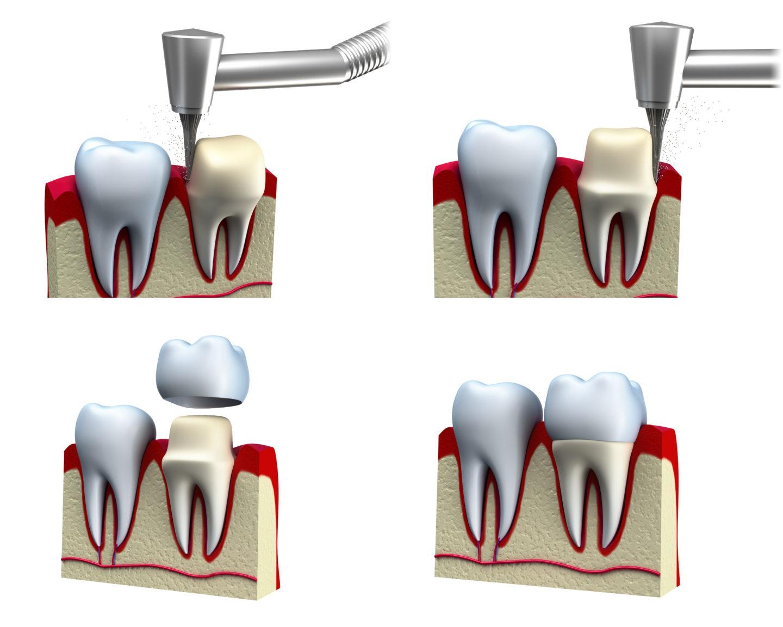 Препарирование зубов под коронки производят чем