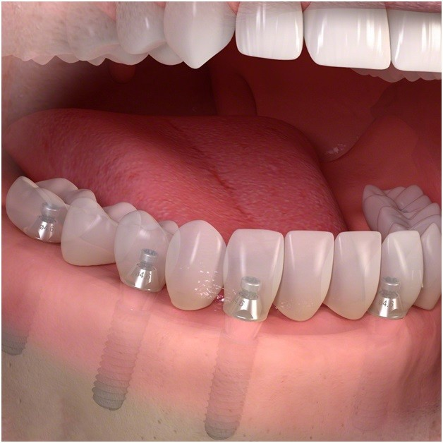 Полная имплантация картинка нижняя челюсть
