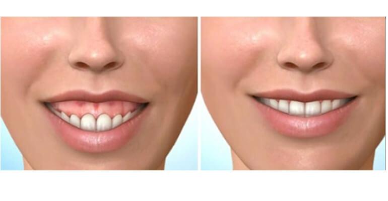 Десневая улыбка фото до и после