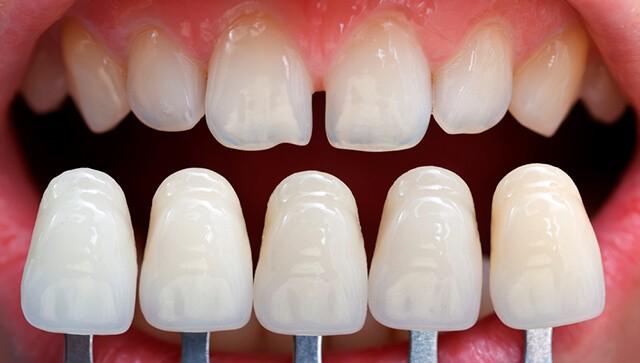 Подбор цвета винира под зубы фото