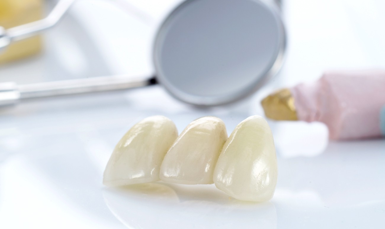 Коронка на зуб:
