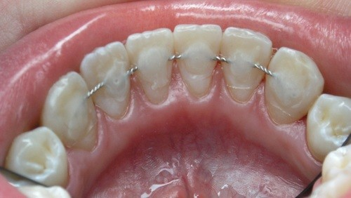Шинирование - фиксация зубов после операции