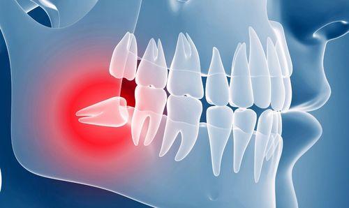 Боль от зубов мудрости фото
