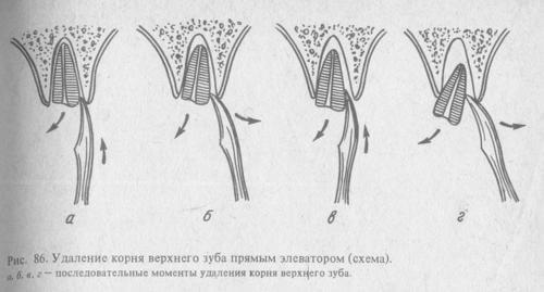 Удаление корня зуба пошагово