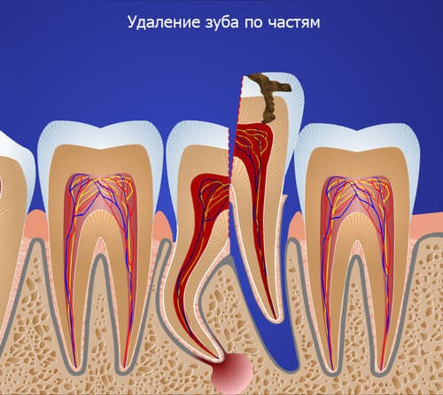 Удаление части зуба - графика