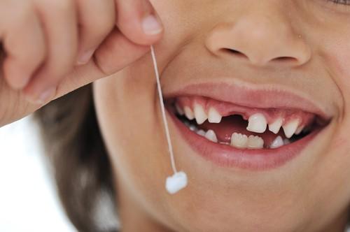 Удаленный молочный зуб - фото