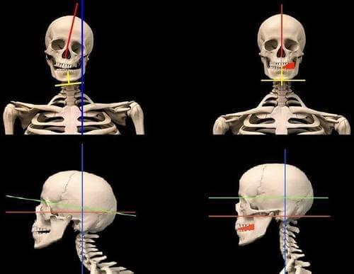Аномалии положения черепа