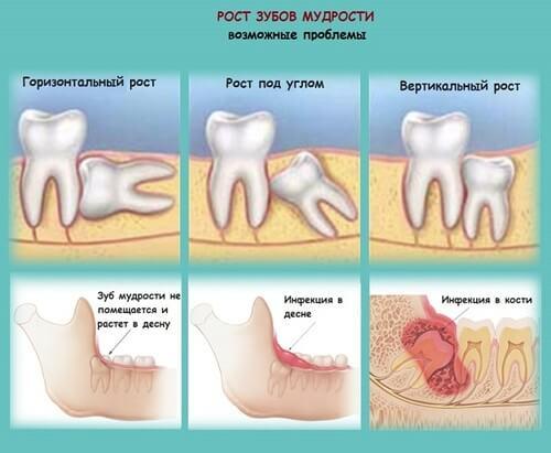 Инфографика - проблемы роста зубов мудрости