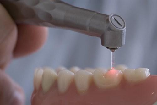Как работает стоматологический разер