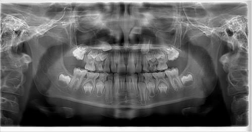 Рентген ретинированных зубов мудрости