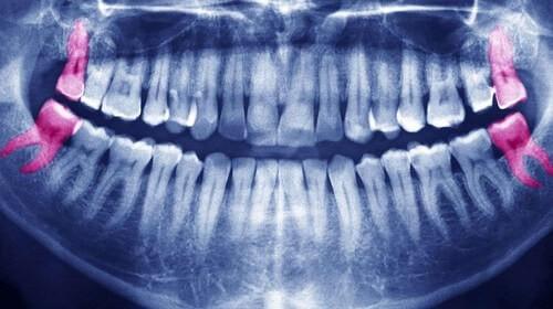 Рентген четыре зуба мудрости