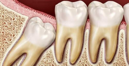 Ретинированный зуб мудрости - графика