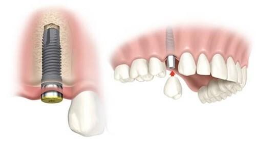 удаление зуба с имплантацией