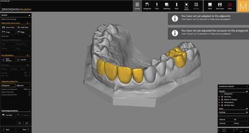 3D модель челюсти