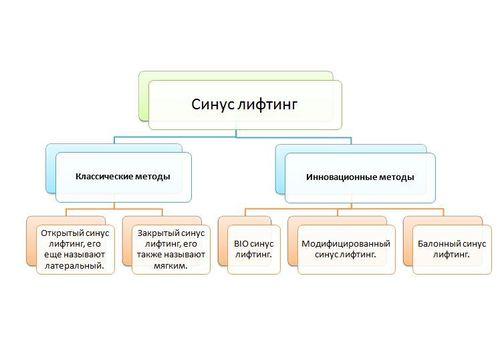 Инфографика - виды синус лифтинга