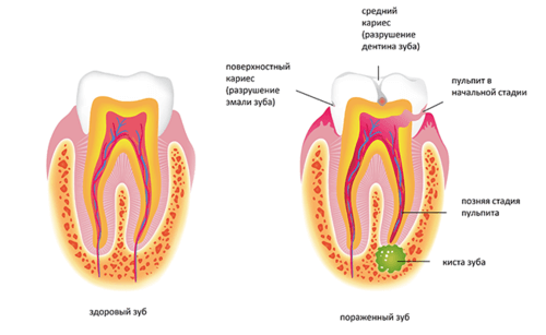 Болезни зуба - инфографика