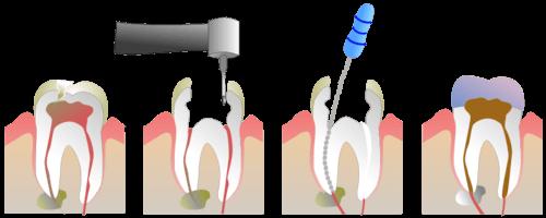 Лечение канаов зуба