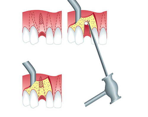 Ампутация корня многокорневого зуба