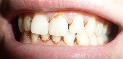 Зубной камень до чистки