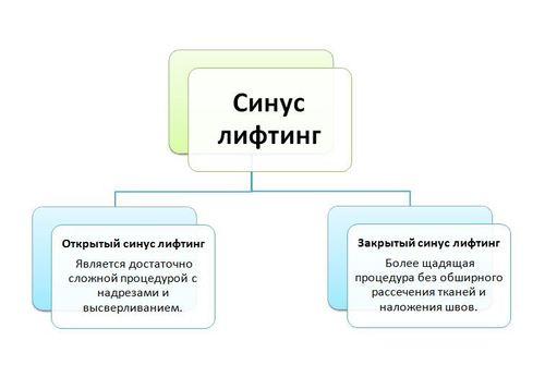 Инфографика - виды синус лифтинга (рис.2)