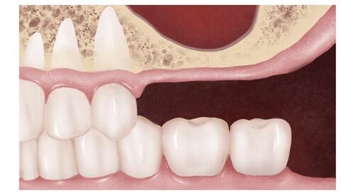 Дефицит кости верхней челюсти