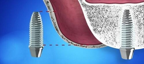Имплантация с синус лифтингом