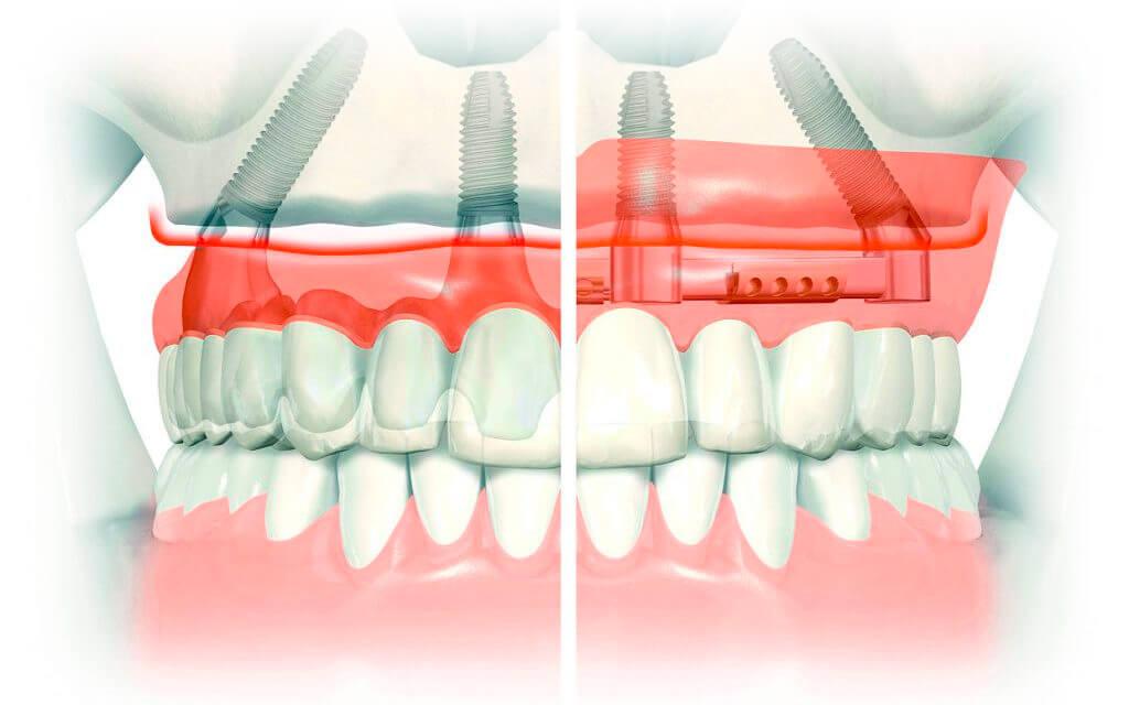Имплантация всех зубов по протоколу All-on-4 («Все-на-четырех»)