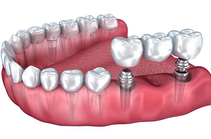 Мост на имплантах на жевательных зубах нижней челюсти
