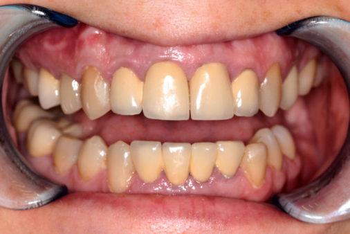 Лечение и имплантация двух зубов - фото до лечения