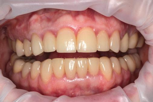 Лечение и имплантация двух зубов - фото после лечения