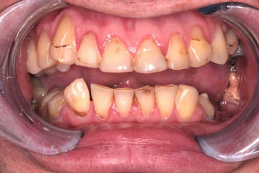Имплантация (без названия) - фото до лечения