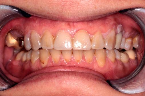 Имплантация 3 зубов, керамические коронки E.max - фото до лечения