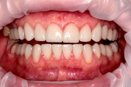 Имплантация 3 зубов, керамические коронки E.max - фото после лечения