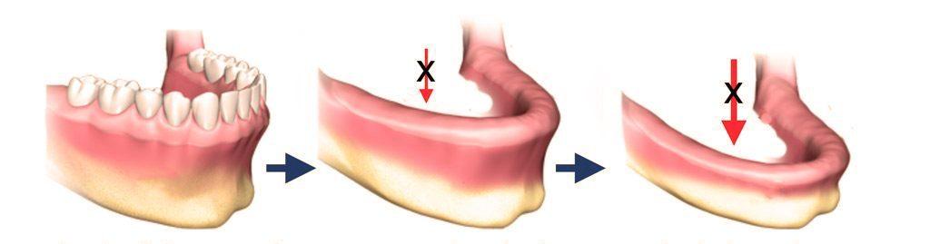 Убыль костной ткани зубов