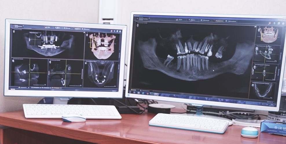 Результаты рентгена челюсти рентгена