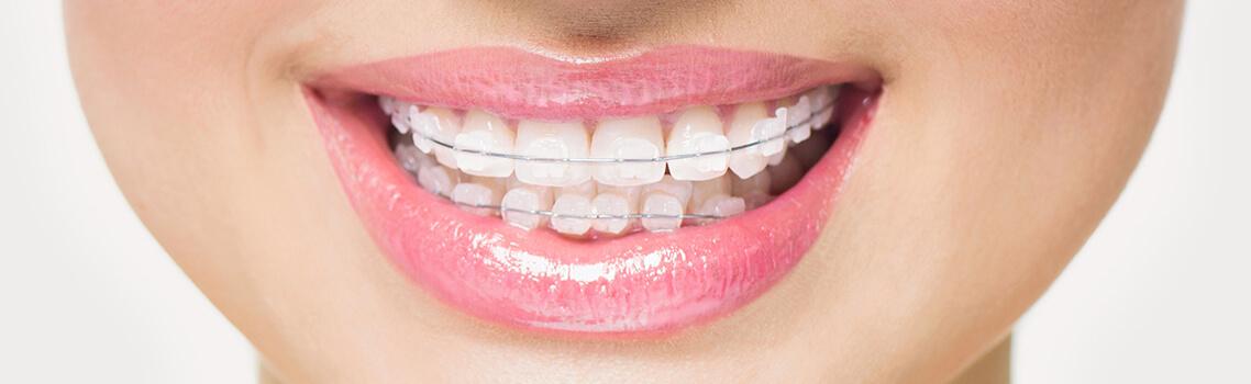 Керамические брекеты для выравнивания зубов