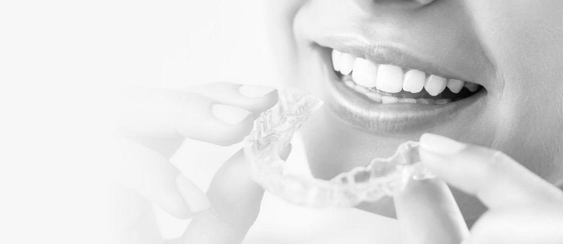 Элайнеры Invisalign для выравнивания зубов