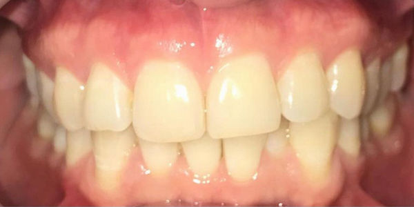 Элайнеры Invisalign® — выравнивание зубов без брекетов - фото до лечения