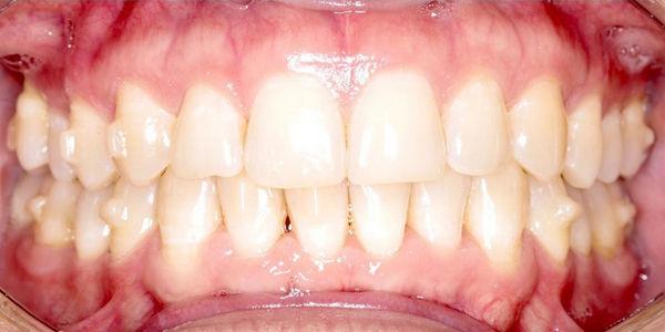 Элайнеры Invisalign® — выравнивание зубов без брекетов - фото после лечения