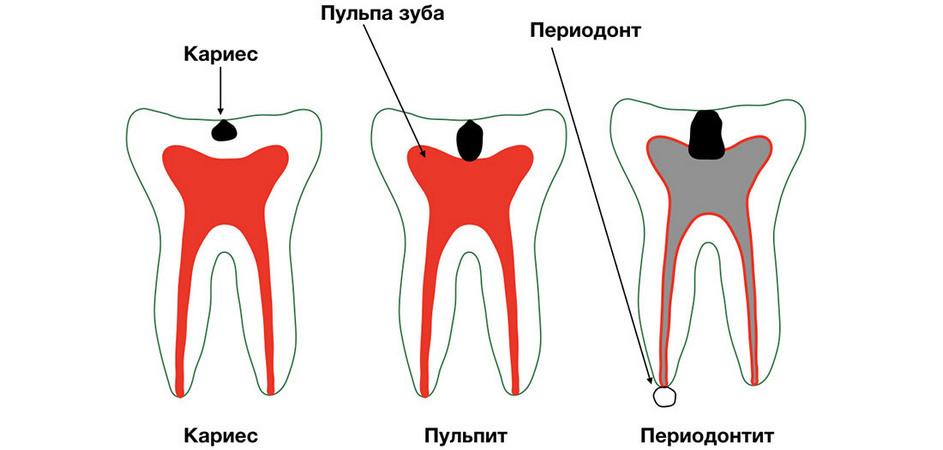 Периодонтит зуба на схеме