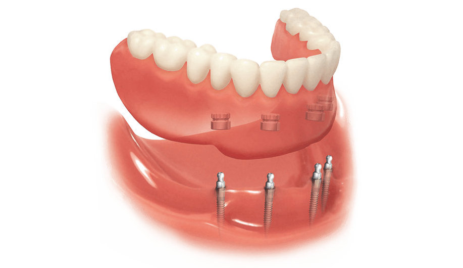 Принцип технологии протезирования на мини-имплантах